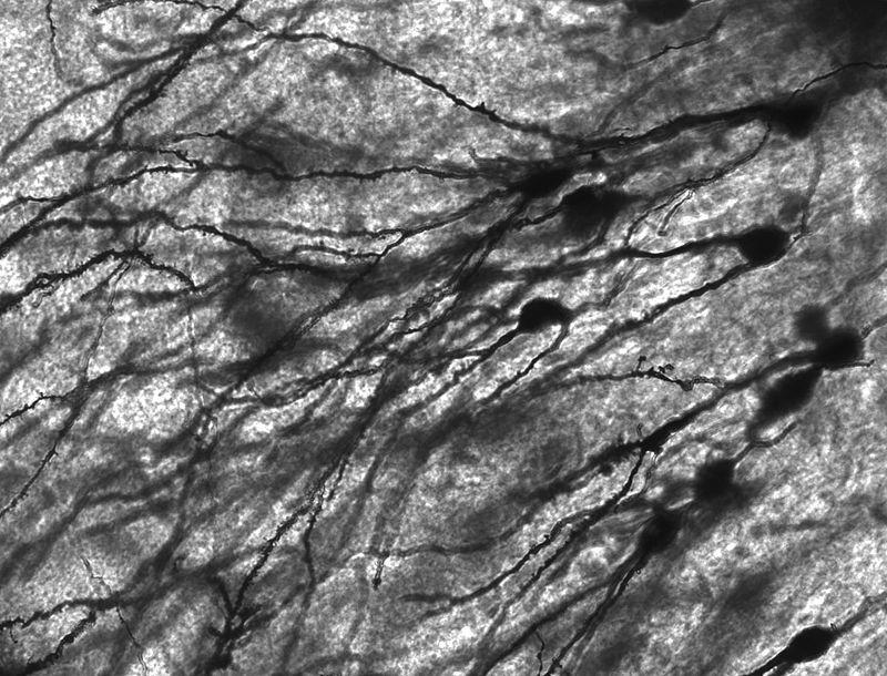 Se descubre una forma de regeneración excepcionalmente rápida en las neuronas lesionadas